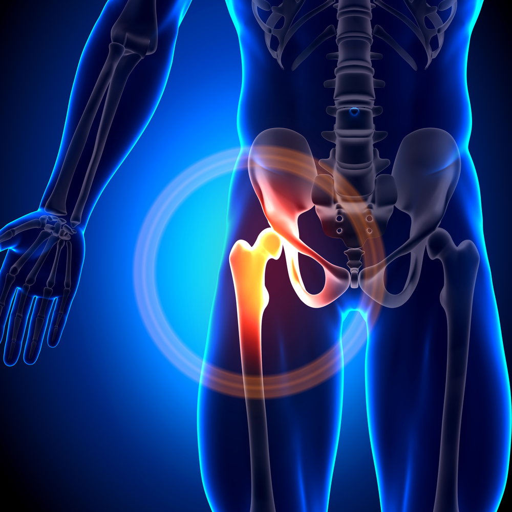 Hip Implant Lawsuits - DePuy Mass Tort Litigation | Brown & Brown